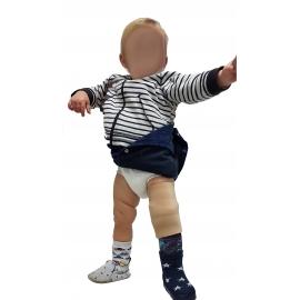 Prothèse bébé